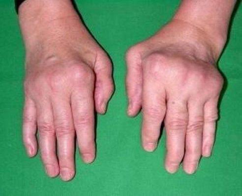 Кисти при ревматоидном артрите.