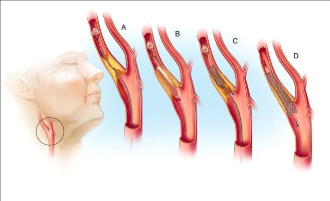 Хирургическое лечение стеноза гортани
