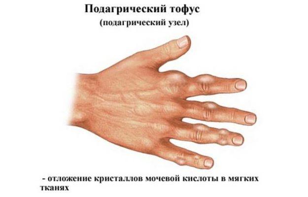 Тофусы на пальце кисти