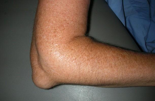 Тофусы – подкожные отложения мочевой кислоты в области локтя.