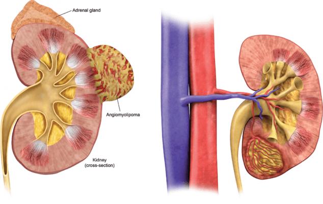 Ультразвуковое исследование мочевыводящих путей