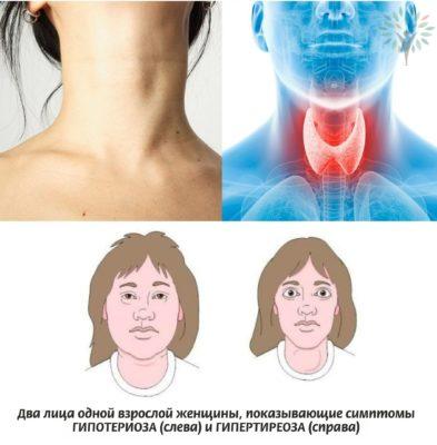 симтомы с ттг
