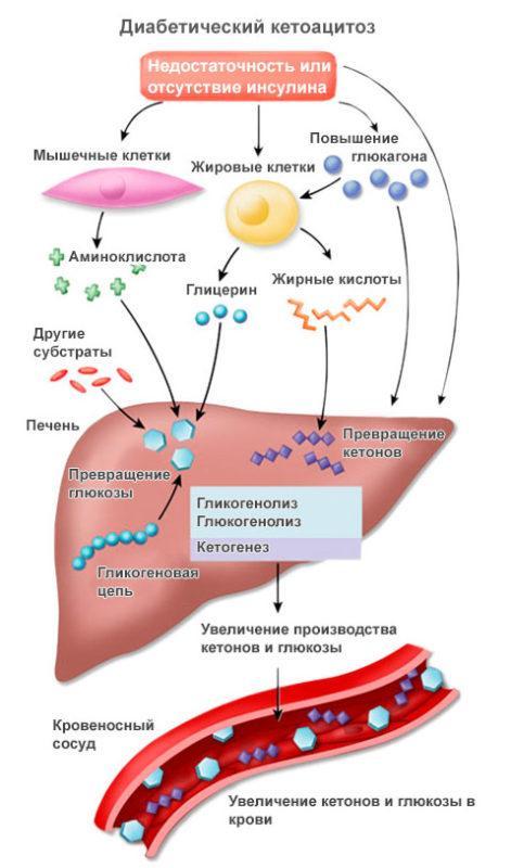 механизм кетоацидоза