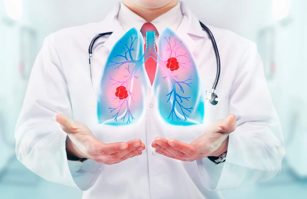 легкие при вирусной пневмонии